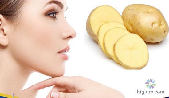 Điều trị nám da - sử dụng khoai tây
